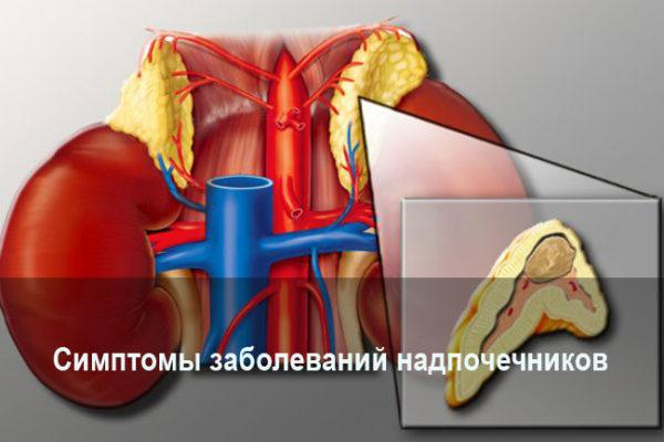 simptomy-zabolevanij-nadpochechnikov